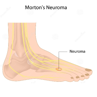 Neuromamortons